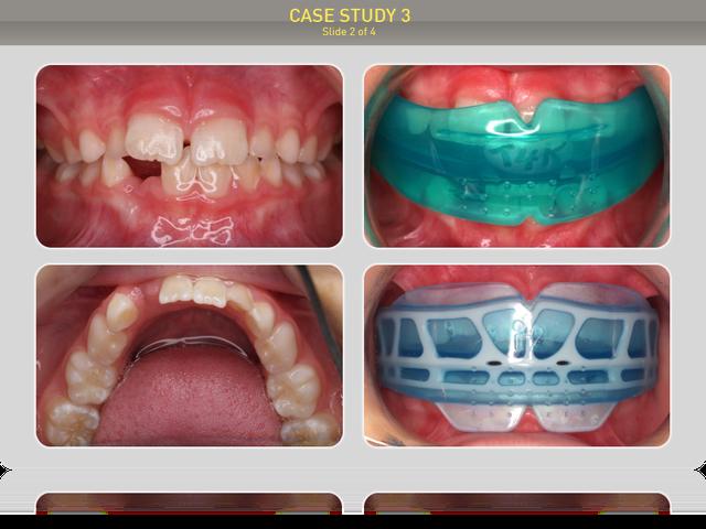 Пациенту было предложено лечение миофункциональным трейнером Т4К голубым Soft (мягкий), через 6 месяцев продолжили лечение миофункциональным трейнером І-2.