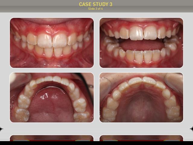 Результаты лечения через 15 месяцев регулярного ношения аппаратов.