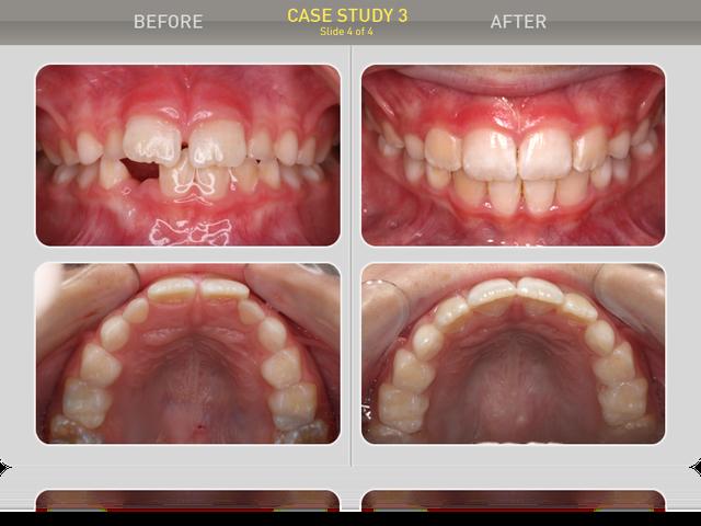 Сравнение ситуации в полости рта: перекрытие - норма, скученности нет, диастемы нет. Пациент и родители результатом довольны.