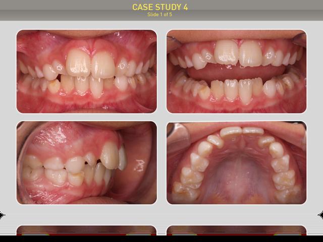 Пациенту 9 лет. Диагноз: дистальный прикус, сагитальная щель 3мм, ротация верхних латеральных резцов в результате недостатка места в зубном ряду, скученность на нижней челюсти.