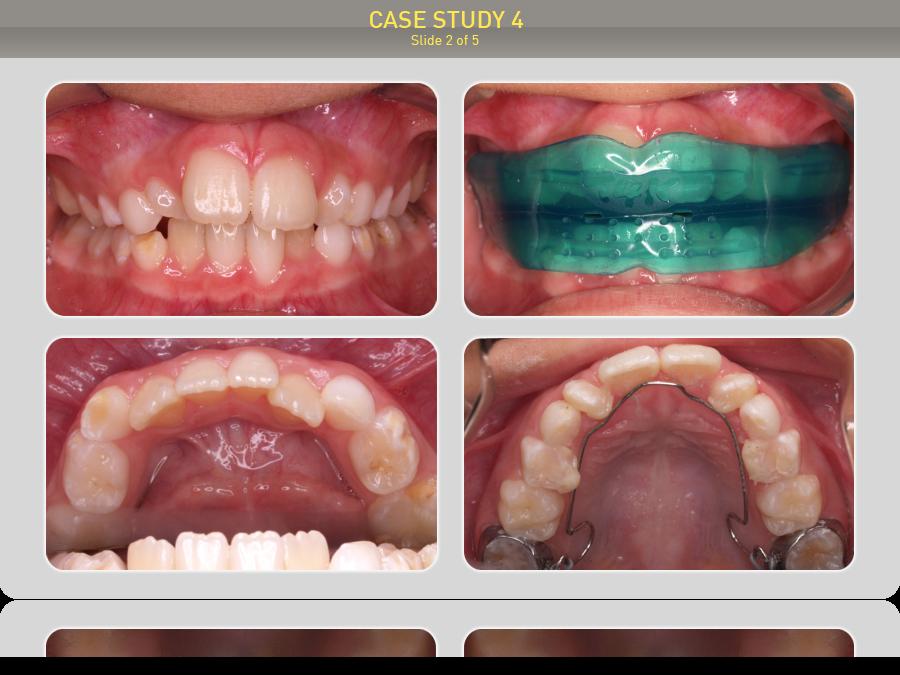 Пациенту 9 лет. Предложено лечение: Преортодонтический трейнер Т4К голубой Soft (мягкий) + Преортодонтический трейнер Т4К розовый Hard (жесткий) + Myobrace T1 No Core (MBN™) + Myobrace I2-n