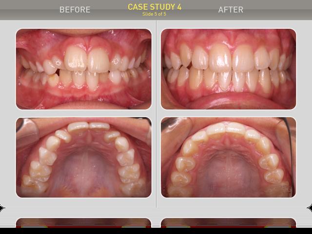 Сравнение ситуации в полости рта: ортогнатический прикус, сагитальная щель - 0мм, скученности нет, зубные ряды ровные, оклюзионные контакты полноценные. Пациент и родители результатом довольны.
