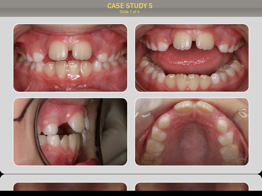Пациенту 7 лет. Диагноз: Открытый прикус. Лечение с помощью Преортодонтического трейнера Т4К розовый Hard (жесткий)