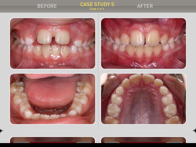 Сравнение ситуации в полости рта: вертикальная щель 0мм, сагитальная щель 0,5мм, диастема - 0,5мм, скученности нет, дыхание - приймущественно носовое. Пациент и родители результатом лечения довольны.