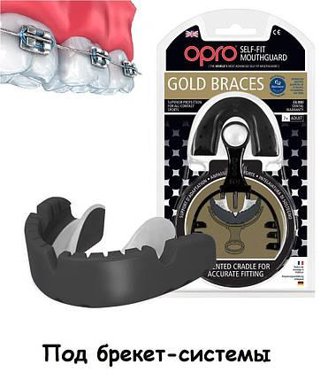Капа OPRO Gold Braces Black/Pearl (art.002194001), фото 2