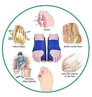 Ортопедический корректор. Бандаж для большого пальца ноги 2штуки, фото 1