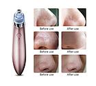 ОПТ ОПТ Вакуумний апарат для чищення пір Beauty Skin Care Specialist XN-8030, фото 2