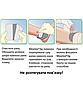 Антимикробная губчастая повязка Mepilex® Ag 12.5х12.5см 1шт., фото 2