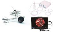 Офисный видеогистероскоп LAPOMED, LPM-S-HYS-4