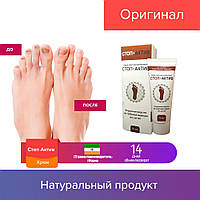 75 ml Стоп Актив | средство для лечения грибка стоп ног, крем от грибка 75 мл