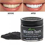 Отбеливатель зубов Miracle Teeth Whitener, черная зубная паста., фото 3