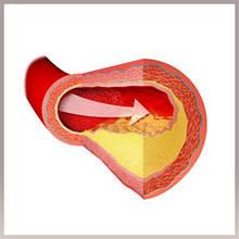 Для снижения уровня холестерина