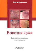 Борк К. Болезни кожи. Диагностика и лечение. Атлас и руководство