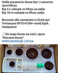 Вакуумні масажні банки 6шт Львів Вакуумні масажні банки 6шт Львів