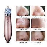 Вакуумний апарат для чищення пір Beauty Skin XN-8030 (GIPS), вакуумний очищувач шкіри, чистка обличчя, прилад, фото 5