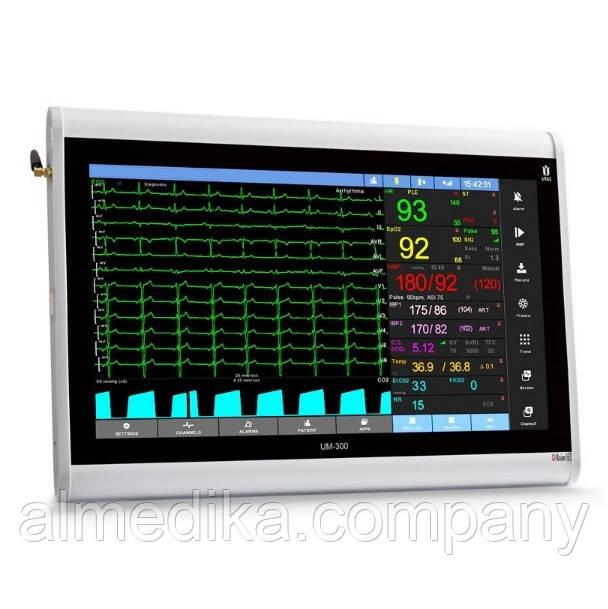 Монитор пациента ЮМ-300-20