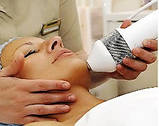 Криотерапия (лечение холодом), фото 5