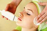Ультразвуковая чистка лица, фото 5