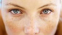 Пигментные пятна на коже, можно ли от них избавится?