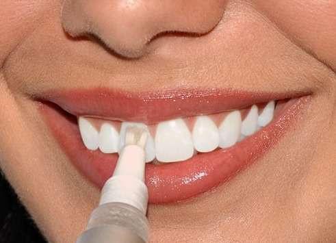 карандаш для отбеливания зубов инструкция
