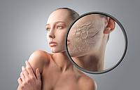 Очень сухая кожа? Чем лечить и какой косметикой можно пользоваться?