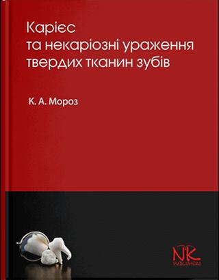 """Книга """"Карієс та некаріозні ураження твердих тканин зубів"""" Мороз К. А."""