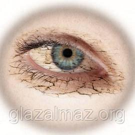 Синдром сухого глаза - лечение