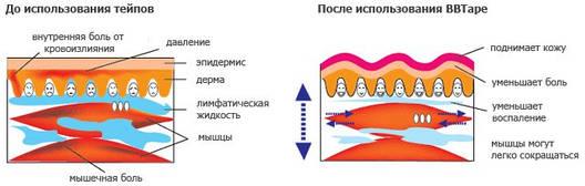 Кинезио тейп EPOS TAPE 10cм х 5м, бежевый (телесный), фото 2