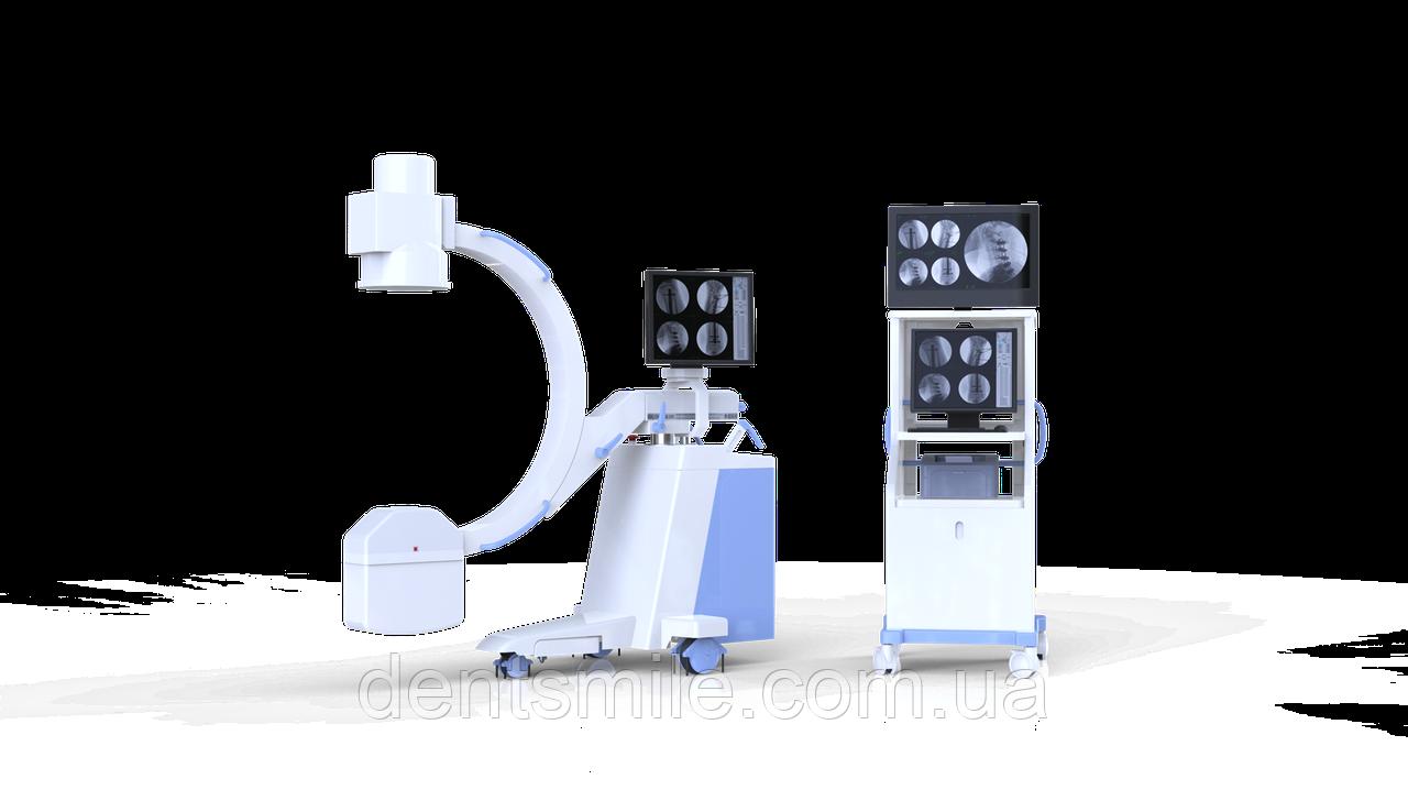 Система рентгенівська мобільна IMAX 112C для С-дуги