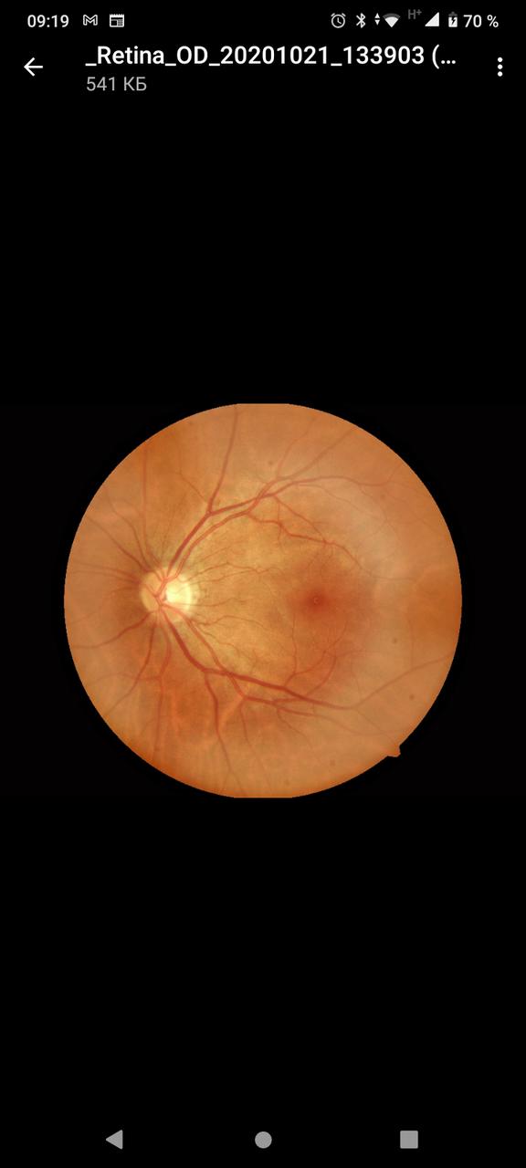 Снимок глазного дна (фундус-камера)