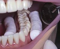 Для чего используют валики в стоматологии