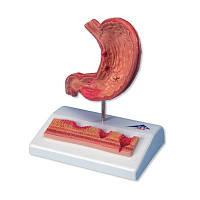 Модель желудка с язвами, 2 части