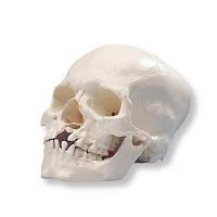 Модель черепа микроцефала