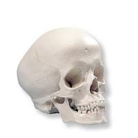 Модель черепа гидроцефала