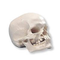 Модель черепа с «волчьей пастью» и с расщелиной в нижней челюсти