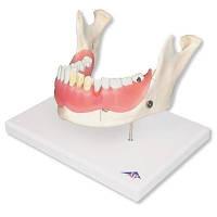 Модель болезней зубов