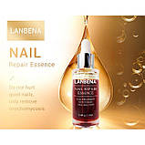 Сыворотка для ног от грибка LANBENA Nail Repair Essence, 12 мл, фото 2