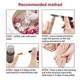 Сыворотка для ног от грибка LANBENA Nail Repair Essence, 12 мл, фото 6