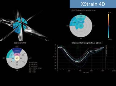 XStrain 4D - оценка сократимости тканей миокарда на объемной модели