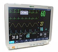 """Монитор пациента С86 (""""БИОМЕД"""" ВМ800D 15""""), фото 1"""