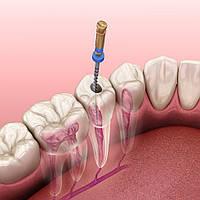 Эндодонтия как направление в стоматологии