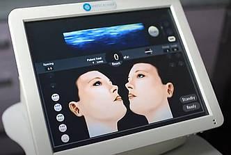 Аппарат SMAS-лифтинга HIFU mini