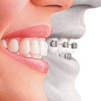 Ортодонтия как отдельная ветка в стоматологии