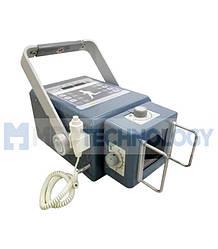 EcoRay ULTRA 100 (EcoRay) Портативный рентген аппарат