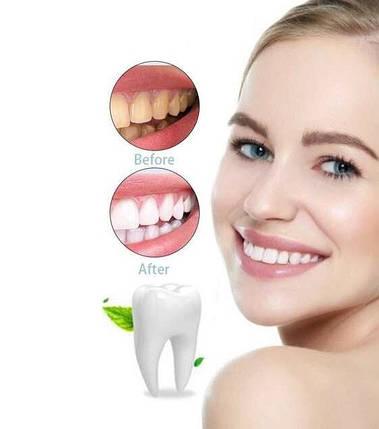 Щітка для відбілювання зубів Spin Smile 360, фото 2