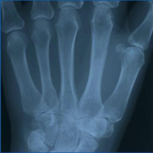 Рентгенпленка