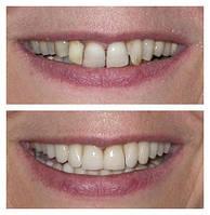 Ортопедическая стоматология Протезирование