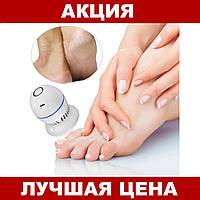 Электрическая пемза-пилка для ног Pedi Vac Прибор для удаления мозолей c вакуумным пылесосом аккумулятор USB