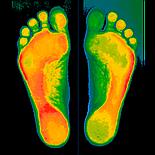 Индивидуальные ортопедические стельки Stopa + диагностика, фото 3