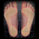 Индивидуальные ортопедические стельки Stopa + диагностика, фото 4